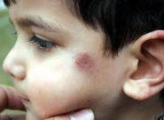 پایان وحشت کودکان بر زخمهای ماندگار