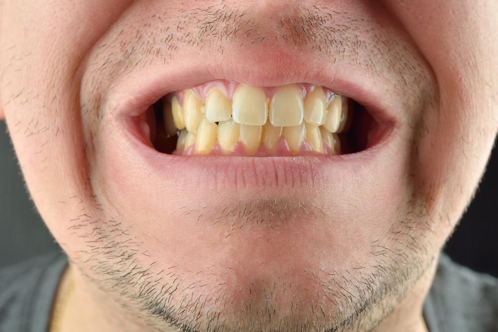 عادتهای غلطی که دندانهای را زرد میکند