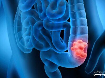سرطان روده بزرگ را بشناسید و از آن دوری کنید!